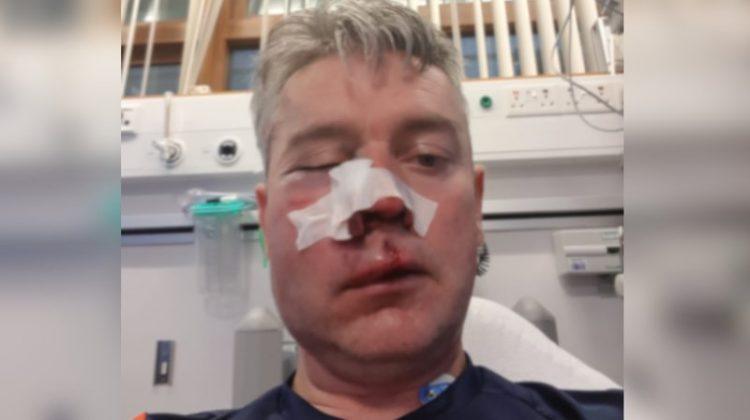 Football referee injured in assault